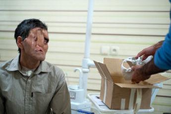 آغاز بزرگترین عمل جراحی تغییر چهره در ایران + عکس