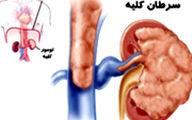 موذی ترین سرطان بدن را بشناسید