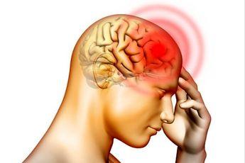 درمان ۳۰ ثانیه ای سردرد بدون دارو
