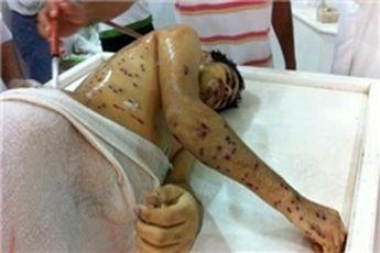 شکنجه در بحرین سازمان یافته است
