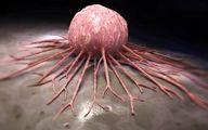 در سرطان مثانه اولین علامت آن ادرار خونی است